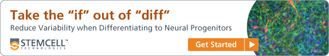 Take the 'if' out of 'diff': Reduce variability when differentiating to neural progenitors