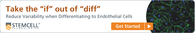Take the 'if' out of 'diff': Reduce variability when differentiating to endothelial cells