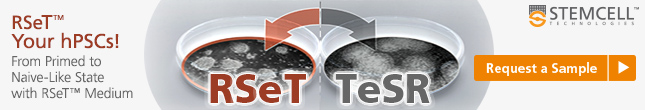 New hPSC culture medium for naive-like pluripotency: RSeT™ - Request a Sample!