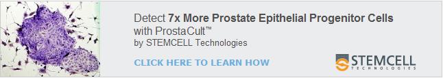 ProstaCult_645x110_v02