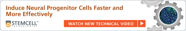 Induce Neural Progenitor Cells Faster and More Effectively - Watch New Technical Video