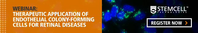 Webinar on the Therapeutic Application of Endothelial Colony-Forming Cells for Retinal Diseases. Register Now!