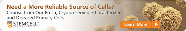 Need a more reliable source of cells? Choose from our range of primary cells. Learn more!