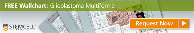 FREE Wallchart: Glioblastoma Multiforme
