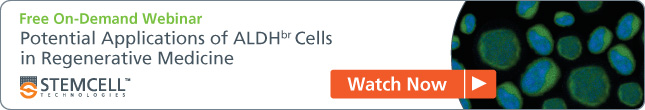 [Free On-Demand Webinar] Potential Applications of ALDH+ Cells in Regenerative Medicine - Watch Now.