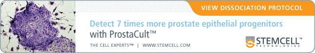 Detect 7 times more prostate epithelial progenitors with ProstaCult