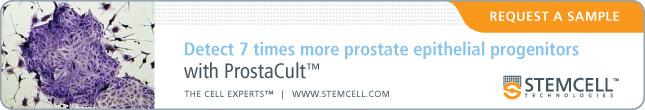 ON112-ProstaCult_v04_645x110-RequestSample